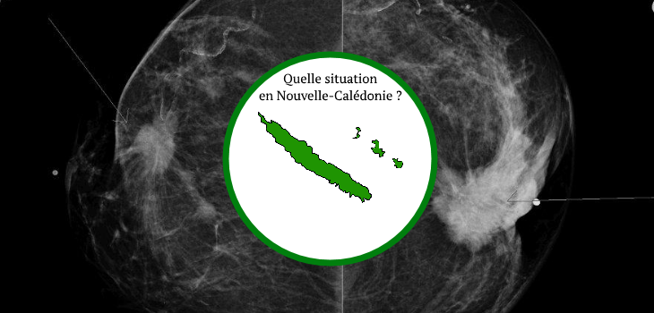 mammographie-depistage-cancer-sein-nouvelle-caledonie