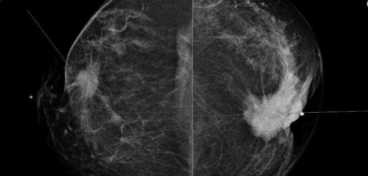 mammographie-depistage-cancer-sein-radiotherapie